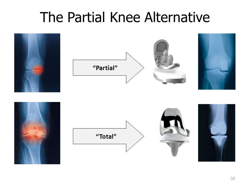 "The Partial Knee Alternative 30 ""Partial"" ""Total"""