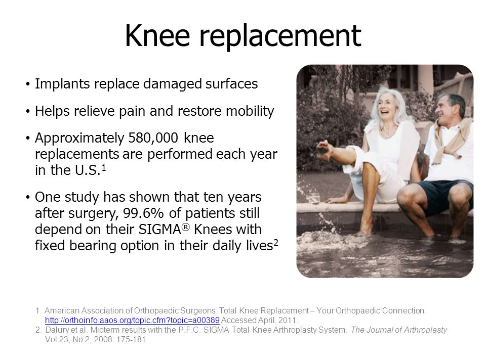 Femoral component Tibial component What is knee replacement.