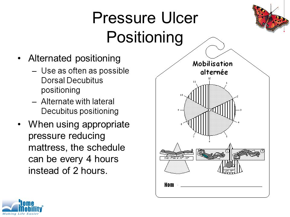 Pressure Ulcer Positioning Alternated positioning –Use as often as possible Dorsal Decubitus positioning –Alternate with lateral Decubitus positioning When using appropriate pressure reducing mattress, the schedule can be every 4 hours instead of 2 hours.