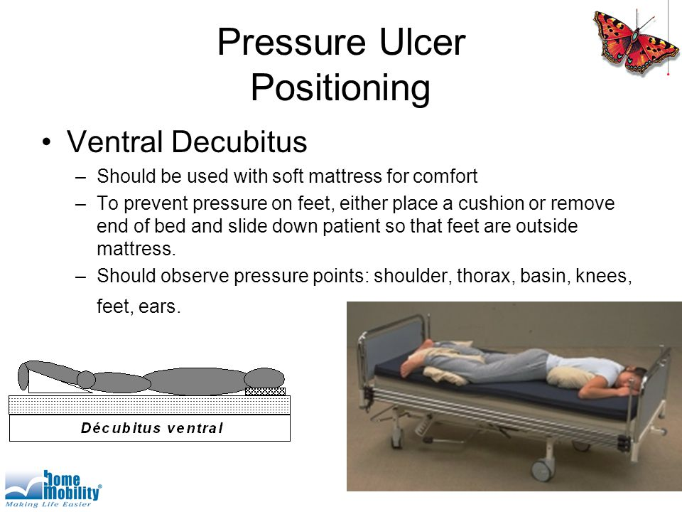 Pressure Ulcer Positioning Ventral Decubitus –Should be used with soft mattress for comfort –To prevent pressure on feet, either place a cushion or remove end of bed and slide down patient so that feet are outside mattress.