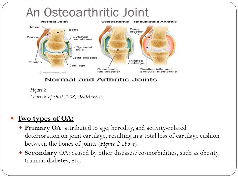 Symptoms & Diagnosis of OA Frequently, OA patients complain of: Stiffness in a joint after getting out of bed or sitting for a long time Swelling and pain in one or more joints A Crunching feeling or the sound of bone rubbing on bone ** If your skin turns red or you feel hot, you may not have OA; it could be of another cause, such as rheumatoid arthritis Common Ways to Diagnose OA Patient's Clinical History and Physical Exam X-rays (Figure 3, right) or MRI images read by an Orthopedist Figure 3.