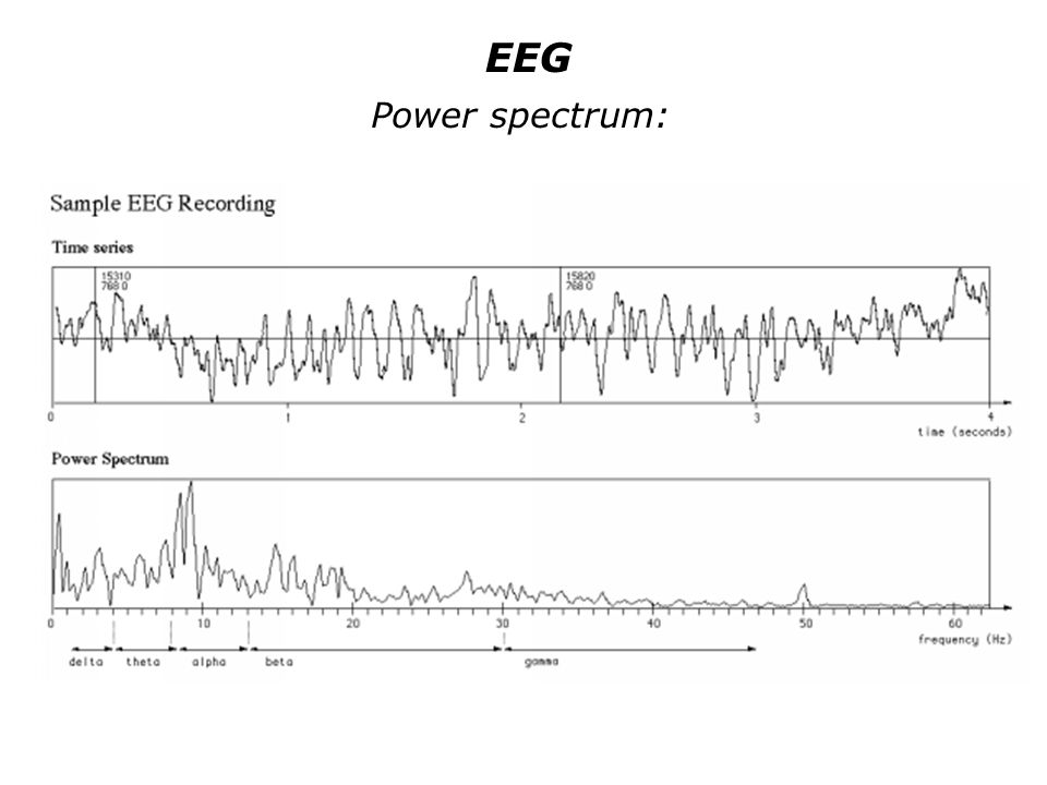 EEG Power spectrum: