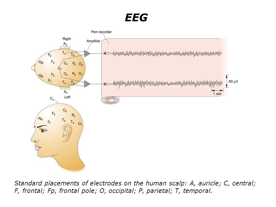 EEG Standard placements of electrodes on the human scalp: A, auricle; C, central; F, frontal; Fp, frontal pole; O, occipital; P, parietal; T, temporal.