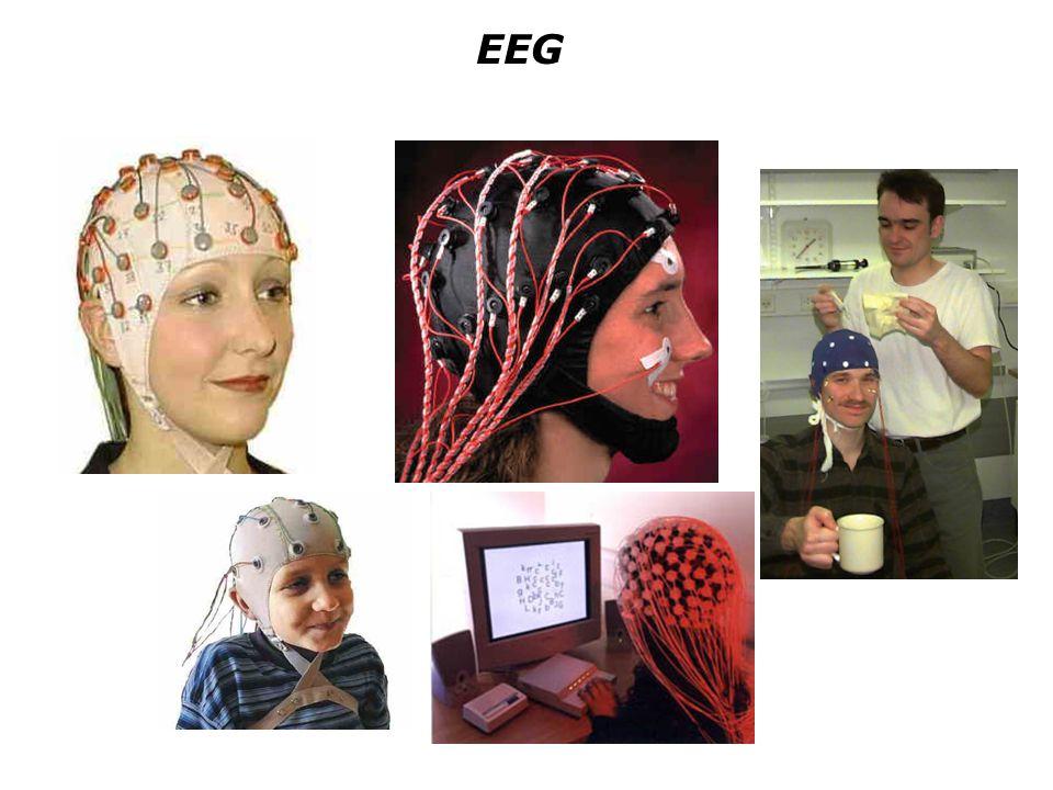 PET - Examples M.Raichle PET images taken at different times, e.g.