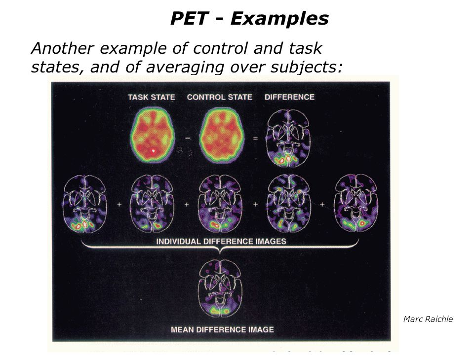 PET - Examples Another example of control and task states, and of averaging over subjects: Marc Raichle