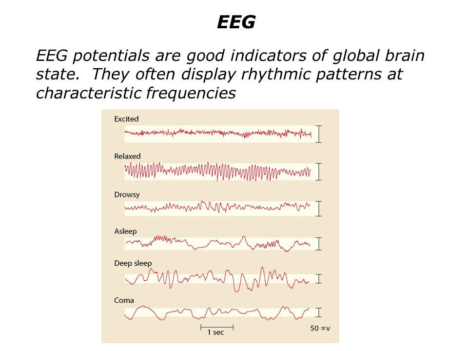 EEG EEG potentials are good indicators of global brain state.