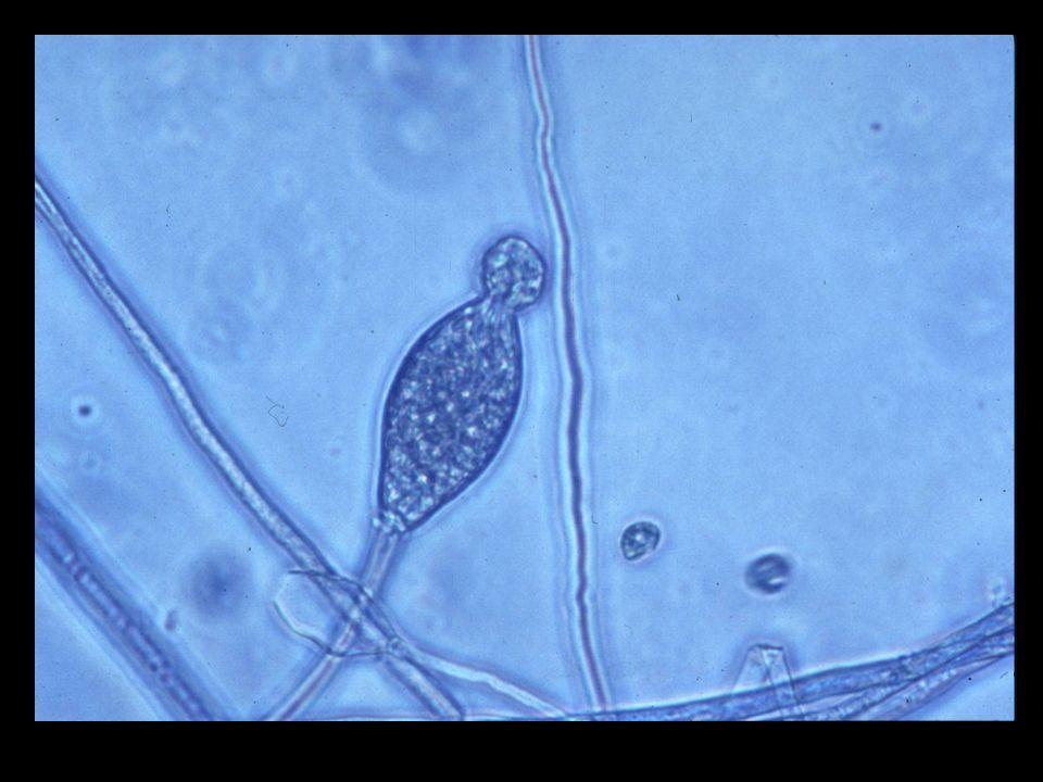 Oomycota Water molds Sexual reproduction = Oospores Asexual reproduction = Zoospores Example: Littleleaf disease