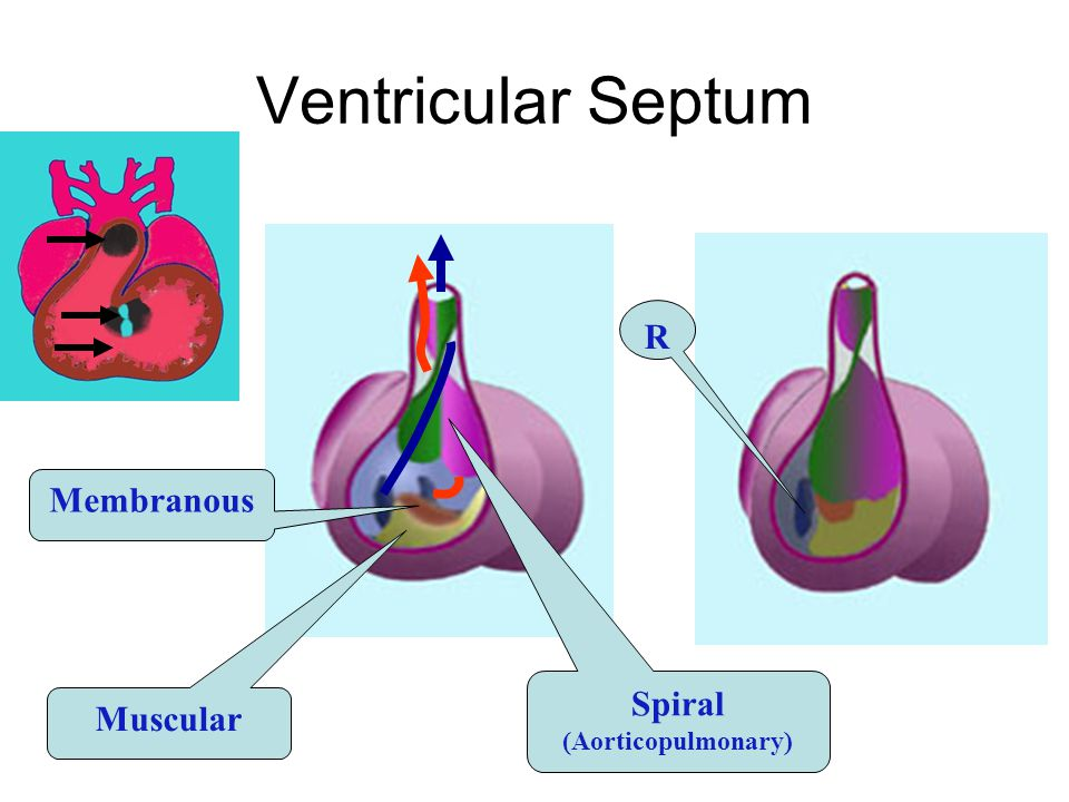 Ventricular Septum R Membranous Muscular Spiral (Aorticopulmonary)