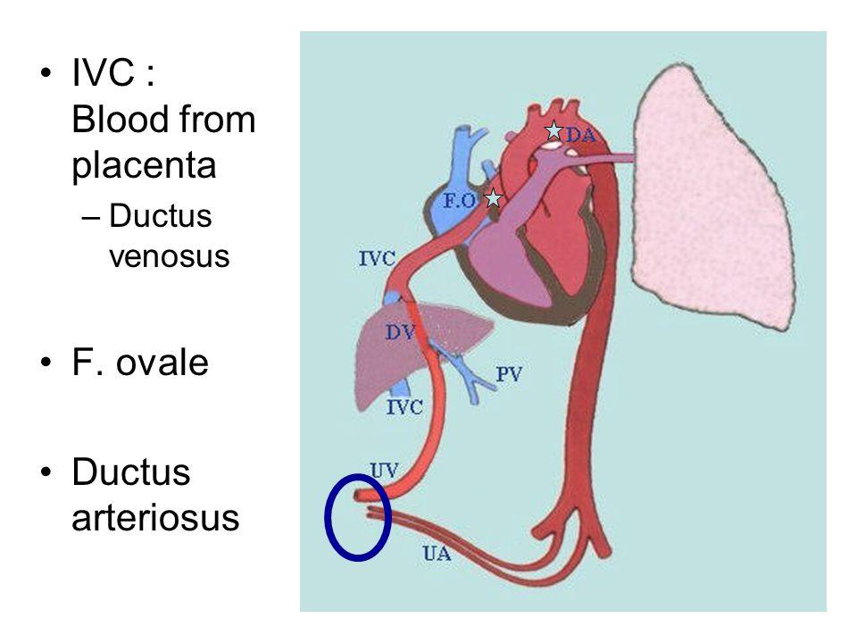 IVC : Blood from placenta –Ductus venosus F. ovale Ductus arteriosus