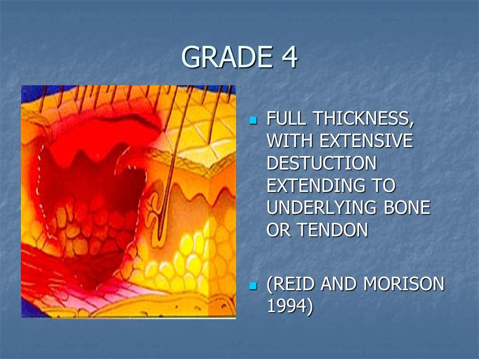 GRADE 4 FULL THICKNESS, WITH EXTENSIVE DESTUCTION EXTENDING TO UNDERLYING BONE OR TENDON FULL THICKNESS, WITH EXTENSIVE DESTUCTION EXTENDING TO UNDERLYING BONE OR TENDON (REID AND MORISON 1994) (REID AND MORISON 1994)