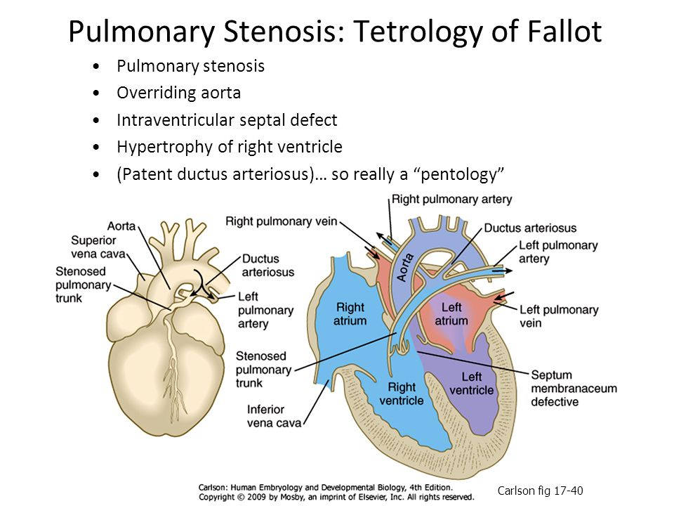 Pulmonary Stenosis: Tetrology of Fallot Pulmonary stenosis Overriding aorta Intraventricular septal defect Hypertrophy of right ventricle (Patent duct
