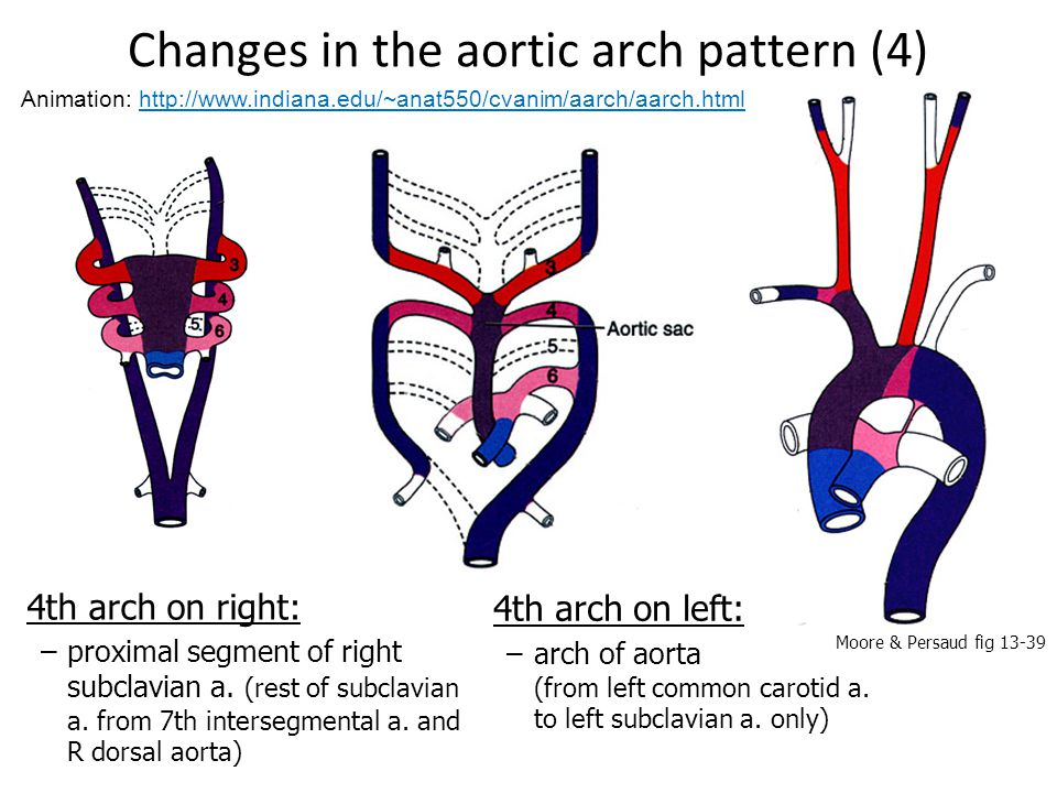 Changes in the aortic arch pattern (4) 4th arch on left: –arch of aorta (from left common carotid a. to left subclavian a. only) 4th arch on right: –p