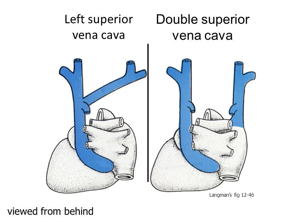 Left superior vena cava Double superior vena cava viewed from behind Langman's fig 12-46