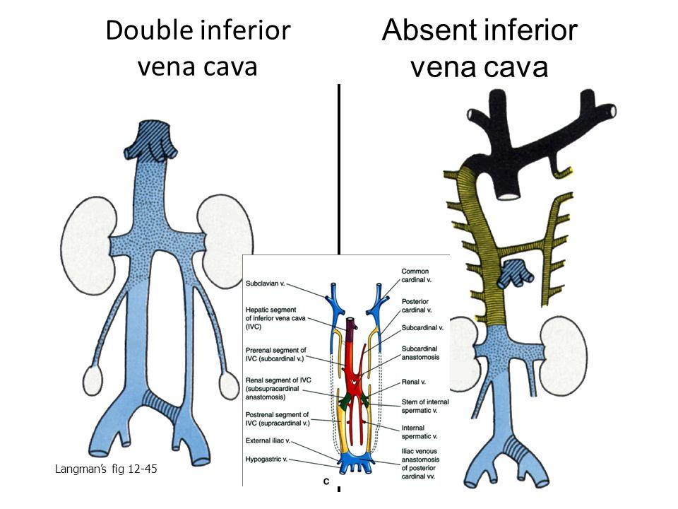 Double inferior vena cava Absent inferior vena cava Langman's fig 12-45