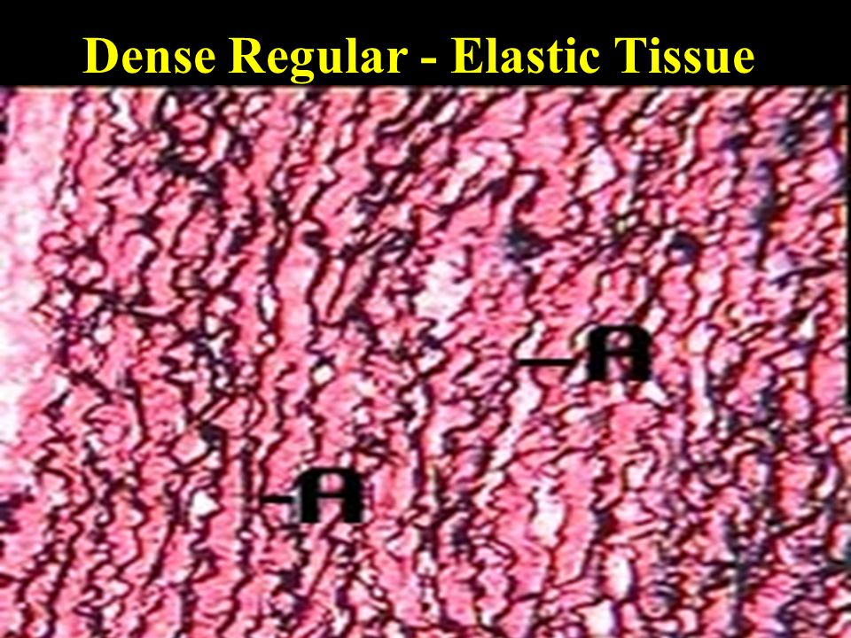Dense Regular - Elastic Tissue