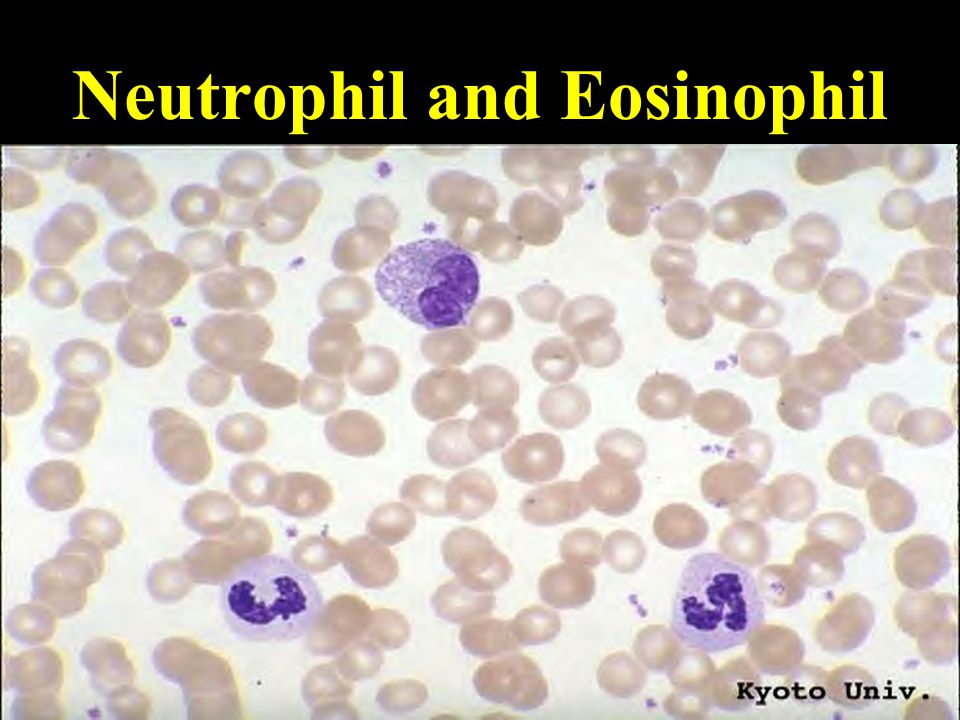 Neutrophil and Eosinophil