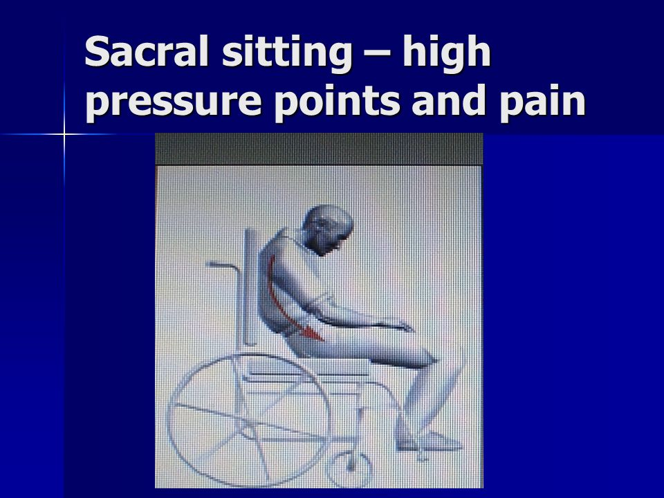 Sacral sitting – high pressure points and pain