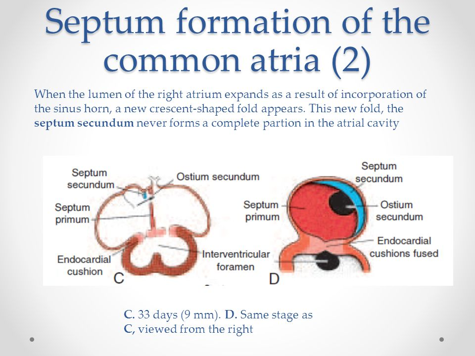 Septum formation of the common atria (2) C. 33 days (9 mm). D. Same stage as C, viewed from the right When the lumen of the right atrium expands as a