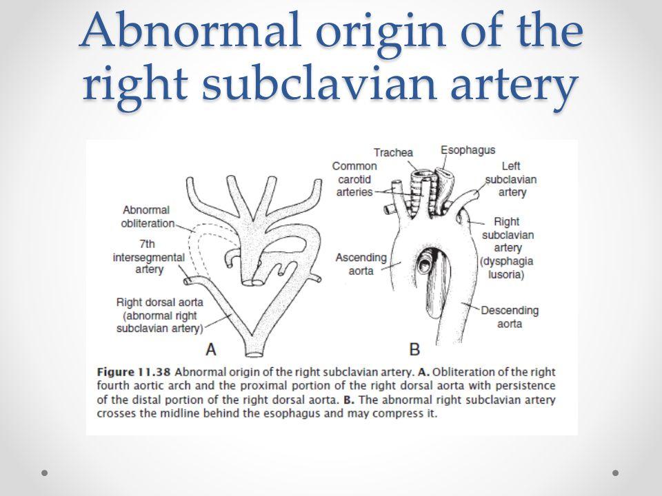 Abnormal origin of the right subclavian artery