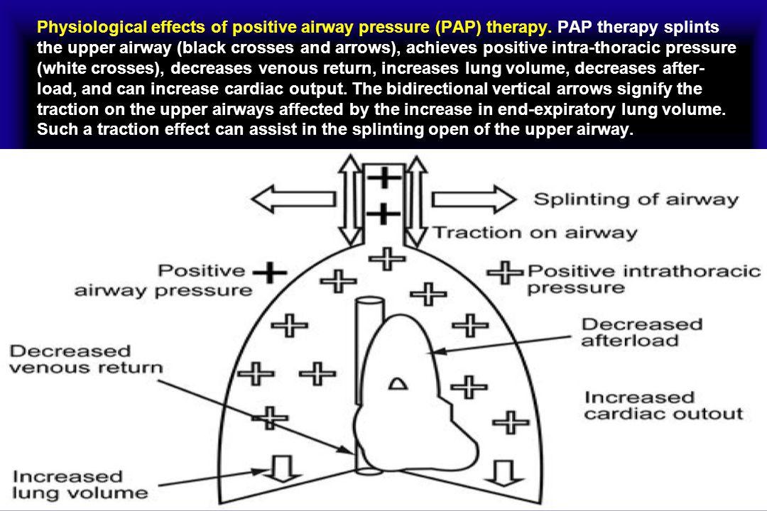 CPAP treatment Non-acute setting: Treatment of obstructive sleep apnea.