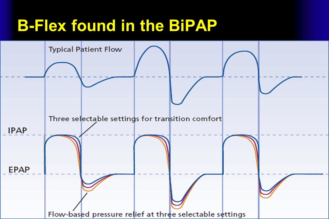 Ramp Most PAP devices, with the exception of certain APAP devices, allow the patient to trigger the ramp option.