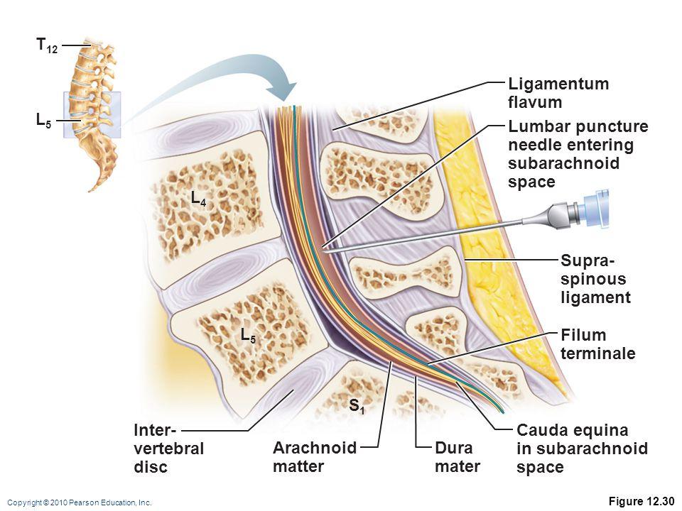 Copyright © 2010 Pearson Education, Inc. Figure 12.30 Ligamentum flavum Supra- spinous ligament Lumbar puncture needle entering subarachnoid space Fil