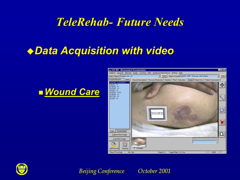 Beijing Conference October 2001 u Data Acquisition with video n Wound Care TeleRehab- Future Needs