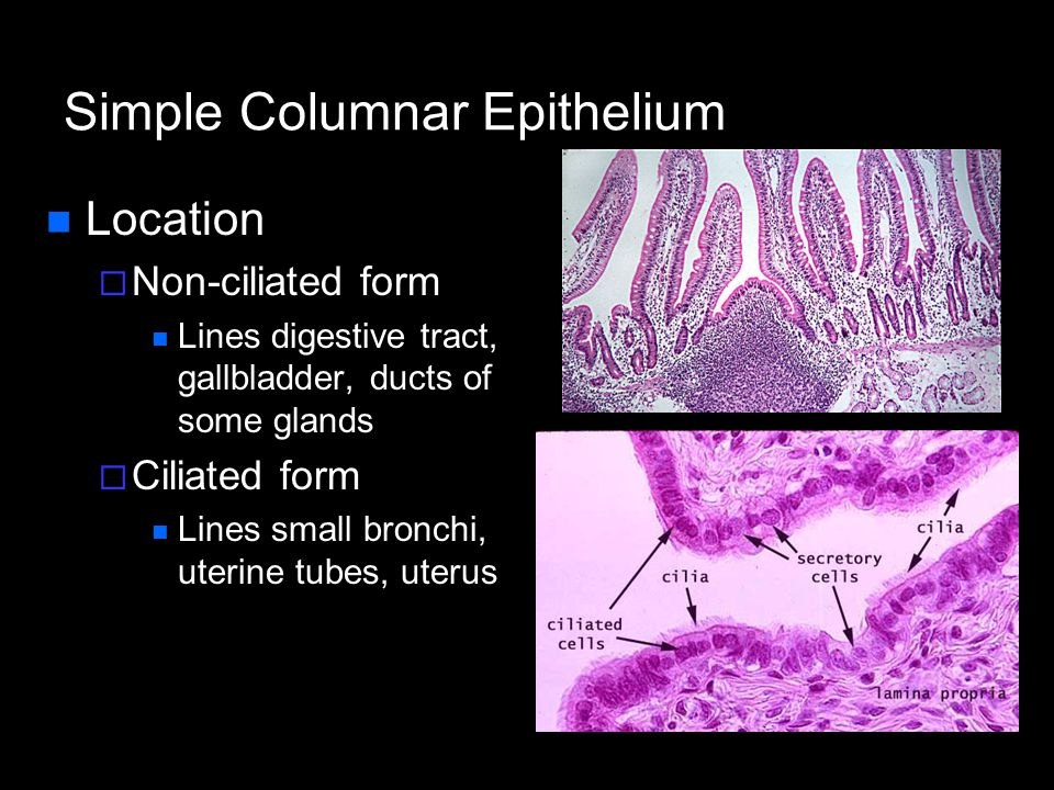 Pseudostratified Columnar Epithelium Description  All cells originate at basement membrane  Only tall cells reach the apical surface  May contain goblet cells and bear cilia  Nuclei lie at varying heights within cells Gives false impression of stratification Function  secretion of mucus; propulsion of mucus by cilia
