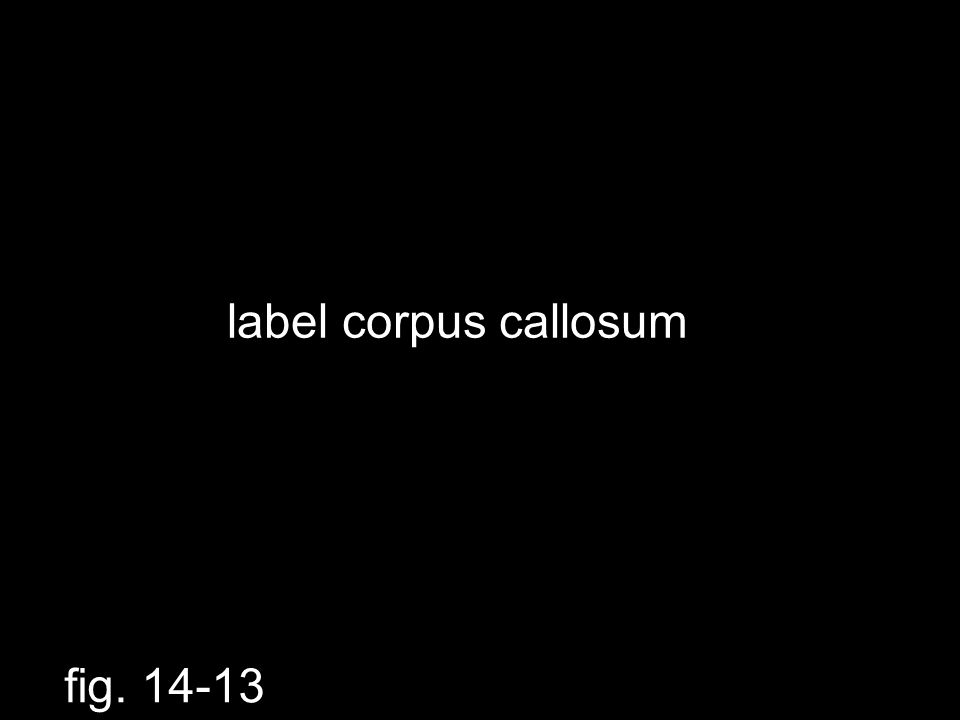 label corpus callosum fig. 14-13