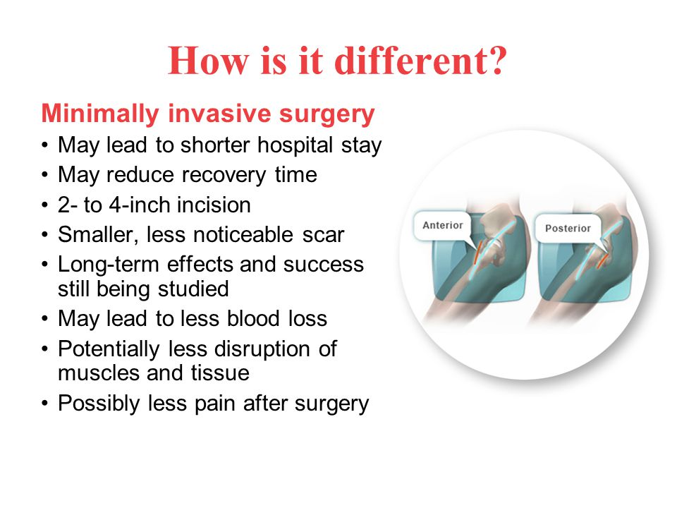 Minimally invasive surgery May lead to shorter hospital stay May reduce recovery time 2- to 4-inch incision Smaller, less noticeable scar Long-term effects and success still being studied May lead to less blood loss Potentially less disruption of muscles and tissue Possibly less pain after surgery