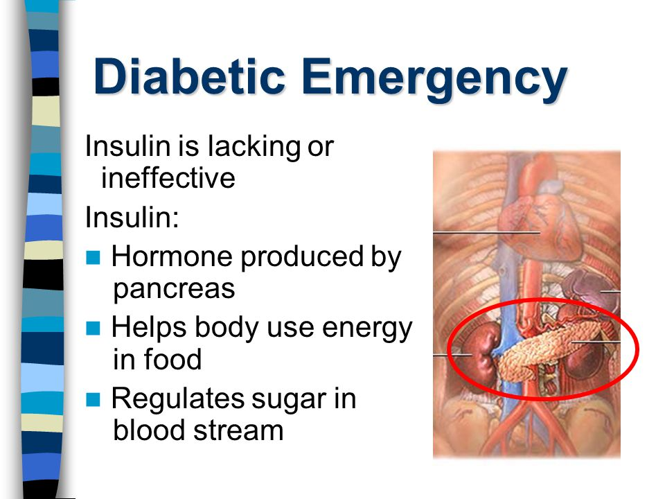 Diabetic Emergency Insulin is lacking or ineffective Insulin: Hormone producedby pancreas Helps body use energy in food Regulates sugar in blood strea
