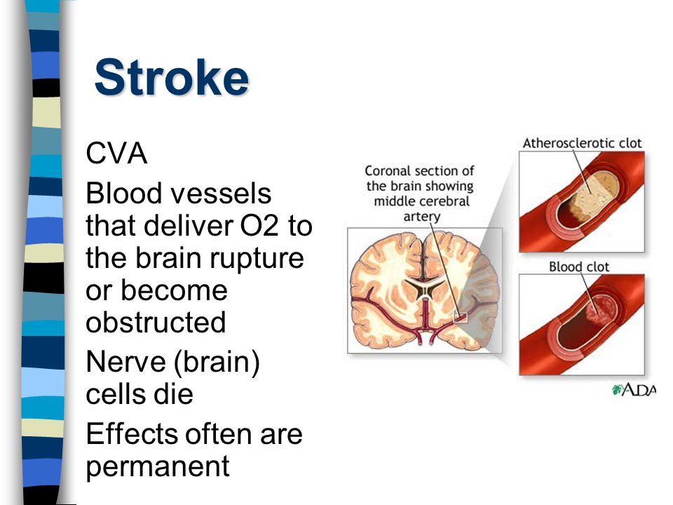 Stroke:TIA Transient Ischemic Attack Symptoms similar to CVA but last only 5 minutes to several hours Mini Strokes Warning sign of possible stroke
