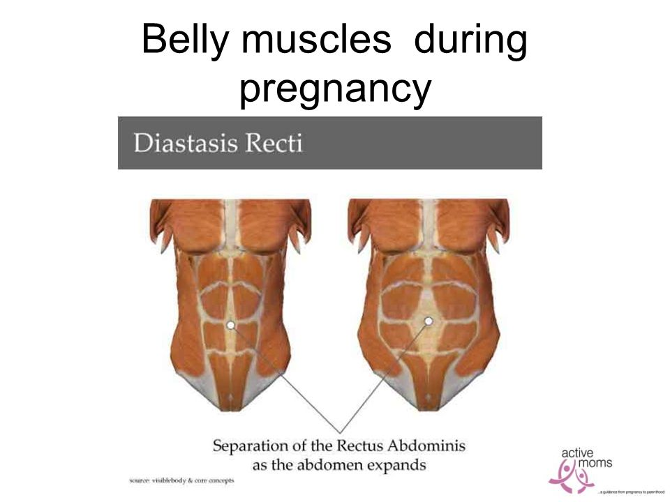 Belly muscles during pregnancy