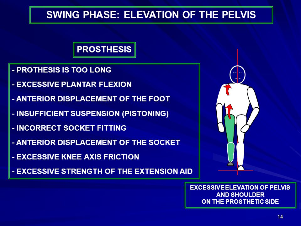 14 - PROTHESIS IS TOO LONG - EXCESSIVE PLANTAR FLEXION - ANTERIOR DISPLACEMENT OF THE FOOT - INSUFFICIENT SUSPENSION (PISTONING) - INCORRECT SOCKET FITTING - ANTERIOR DISPLACEMENT OF THE SOCKET - EXCESSIVE KNEE AXIS FRICTION - EXCESSIVE STRENGTH OF THE EXTENSION AID PROSTHESIS EXCESSIVE ELEVATION OF PELVIS AND SHOULDER ON THE PROSTHETIC SIDE SWING PHASE: ELEVATION OF THE PELVIS
