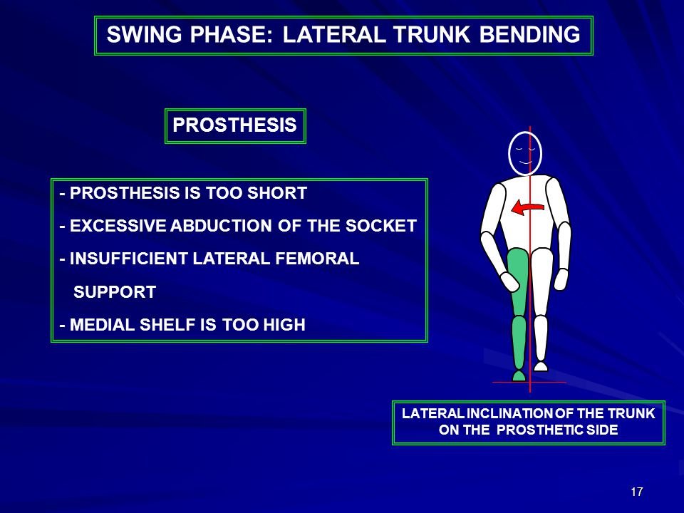 17 - PROSTHESIS IS TOO SHORT - EXCESSIVE ABDUCTION OF THE SOCKET - INSUFFICIENT LATERAL FEMORAL SUPPORT - MEDIAL SHELF IS TOO HIGH PROSTHESIS LATERAL INCLINATION OF THE TRUNK ON THE PROSTHETIC SIDE SWING PHASE: LATERAL TRUNK BENDING