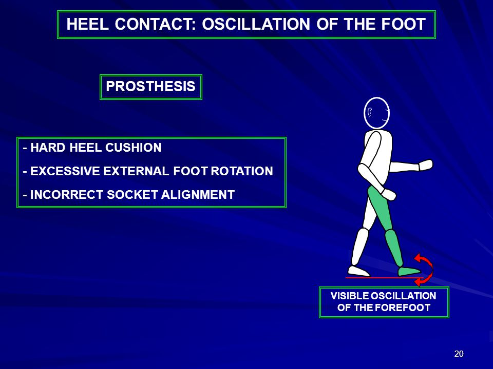 20 HEEL CONTACT: OSCILLATION OF THE FOOT - HARD HEEL CUSHION - EXCESSIVE EXTERNAL FOOT ROTATION - INCORRECT SOCKET ALIGNMENT PROSTHESIS VISIBLE OSCILL