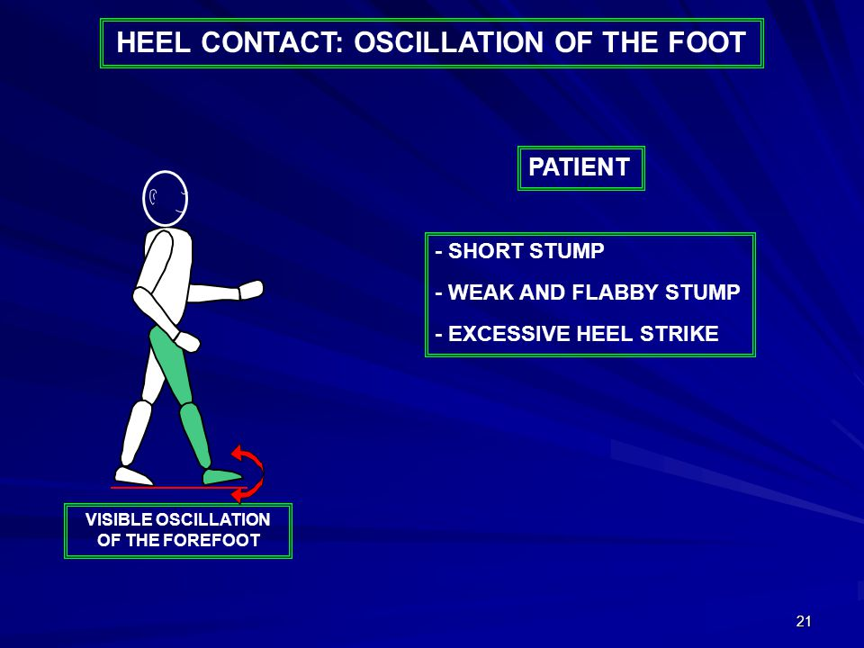 21 HEEL CONTACT: OSCILLATION OF THE FOOT - SHORT STUMP - WEAK AND FLABBY STUMP - EXCESSIVE HEEL STRIKE PATIENT VISIBLE OSCILLATION OF THE FOREFOOT