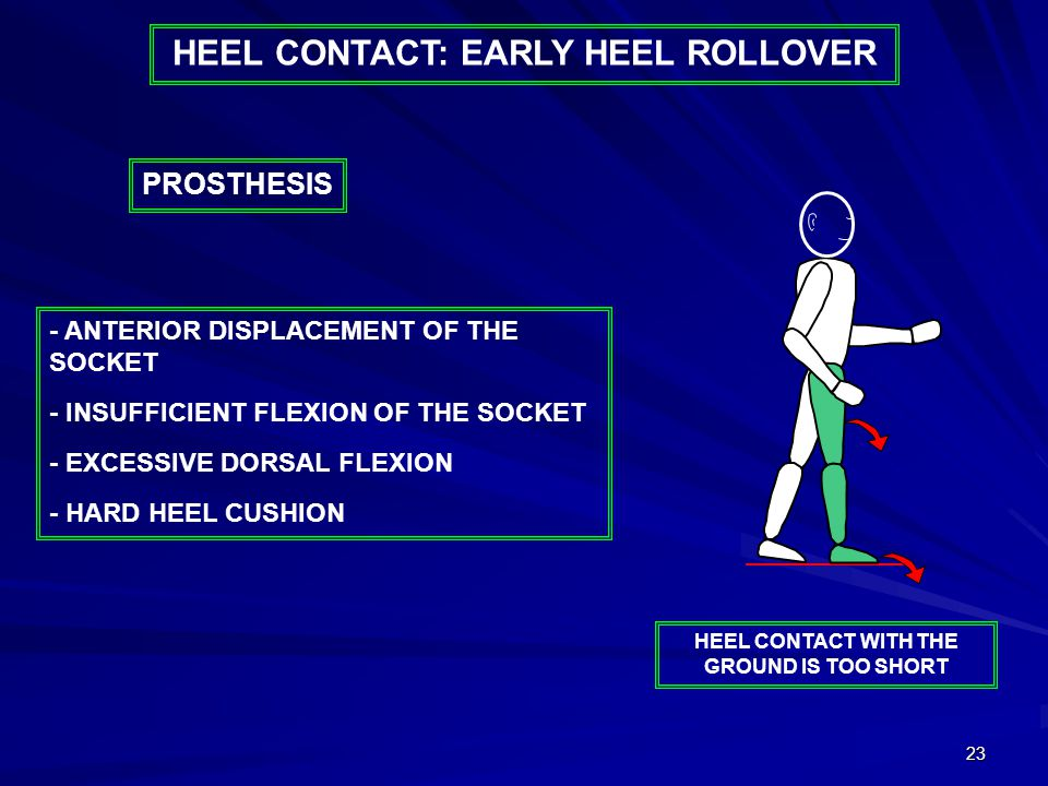 23 - ANTERIOR DISPLACEMENT OF THE SOCKET - INSUFFICIENT FLEXION OF THE SOCKET - EXCESSIVE DORSAL FLEXION - HARD HEEL CUSHION PROSTHESIS HEEL CONTACT WITH THE GROUND IS TOO SHORT HEEL CONTACT: EARLY HEEL ROLLOVER