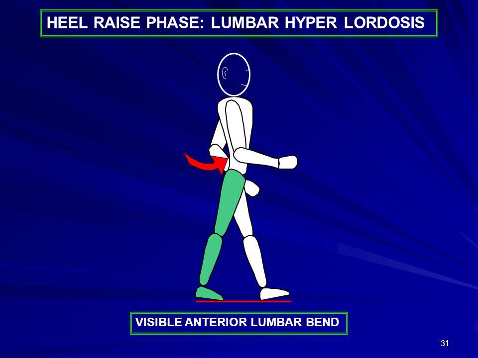 31 HEEL RAISE PHASE: LUMBAR HYPER LORDOSIS VISIBLE ANTERIOR LUMBAR BEND