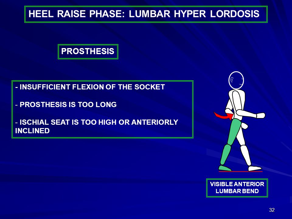 32 HEEL RAISE PHASE: LUMBAR HYPER LORDOSIS - INSUFFICIENT FLEXION OF THE SOCKET - PROSTHESIS IS TOO LONG - ISCHIAL SEAT IS TOO HIGH OR ANTERIORLY INCLINED PROSTHESIS VISIBLE ANTERIOR LUMBAR BEND