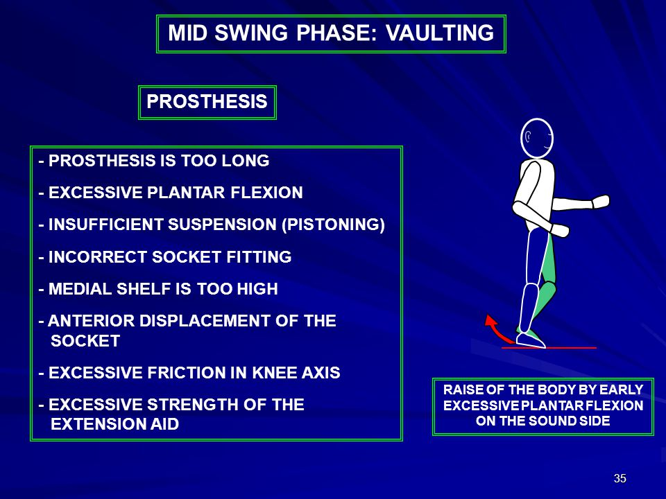 35 MID SWING PHASE: VAULTING - PROSTHESIS IS TOO LONG - EXCESSIVE PLANTAR FLEXION - INSUFFICIENT SUSPENSION (PISTONING) - INCORRECT SOCKET FITTING - MEDIAL SHELF IS TOO HIGH - ANTERIOR DISPLACEMENT OF THE SOCKET - EXCESSIVE FRICTION IN KNEE AXIS - EXCESSIVE STRENGTH OF THE EXTENSION AID PROSTHESIS RAISE OF THE BODY BY EARLY EXCESSIVE PLANTAR FLEXION ON THE SOUND SIDE