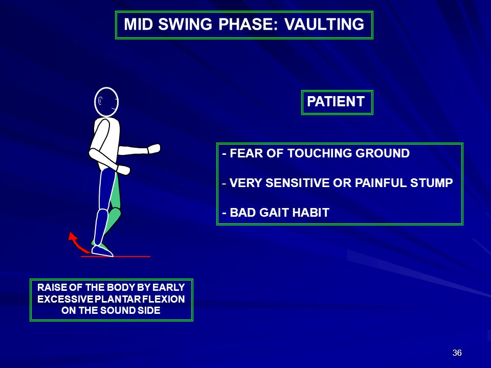 36 MID SWING PHASE: VAULTING - FEAR OF TOUCHING GROUND - VERY SENSITIVE OR PAINFUL STUMP - BAD GAIT HABIT PATIENT RAISE OF THE BODY BY EARLY EXCESSIVE