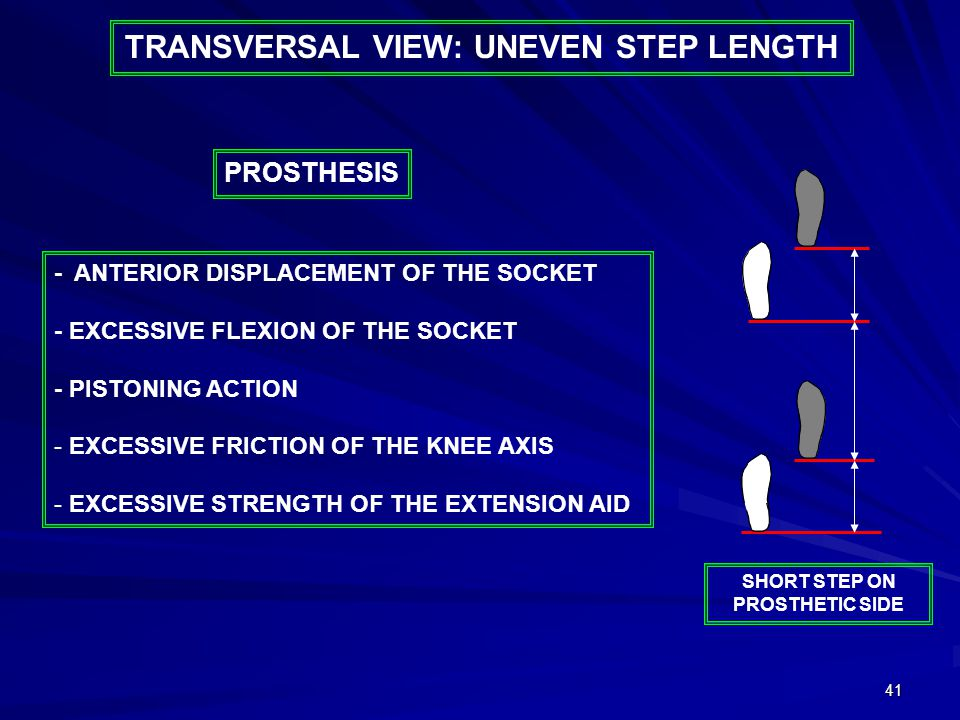 41 TRANSVERSAL VIEW: UNEVEN STEP LENGTH - ANTERIOR DISPLACEMENT OF THE SOCKET - EXCESSIVE FLEXION OF THE SOCKET - PISTONING ACTION - EXCESSIVE FRICTION OF THE KNEE AXIS - EXCESSIVE STRENGTH OF THE EXTENSION AID PROSTHESIS SHORT STEP ON PROSTHETIC SIDE