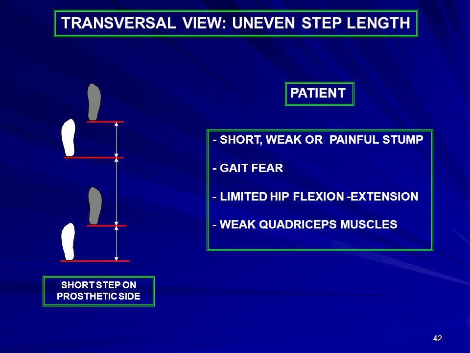 42 TRANSVERSAL VIEW: UNEVEN STEP LENGTH - SHORT, WEAK OR PAINFUL STUMP - GAIT FEAR - LIMITED HIP FLEXION -EXTENSION - WEAK QUADRICEPS MUSCLES PATIENT SHORT STEP ON PROSTHETIC SIDE