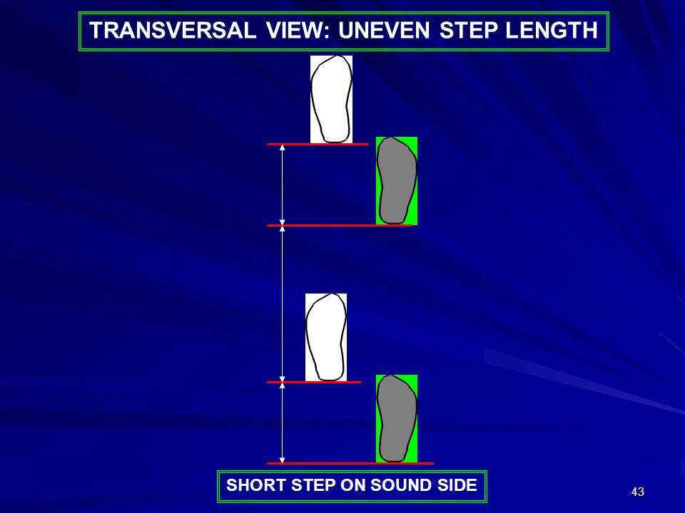 43 SHORT STEP ON SOUND SIDE TRANSVERSAL VIEW: UNEVEN STEP LENGTH