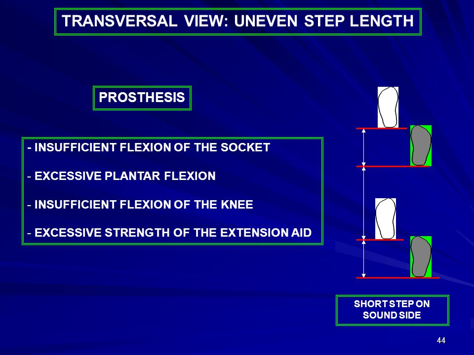 44 - INSUFFICIENT FLEXION OF THE SOCKET - EXCESSIVE PLANTAR FLEXION - INSUFFICIENT FLEXION OF THE KNEE - EXCESSIVE STRENGTH OF THE EXTENSION AID PROSTHESIS SHORT STEP ON SOUND SIDE TRANSVERSAL VIEW: UNEVEN STEP LENGTH