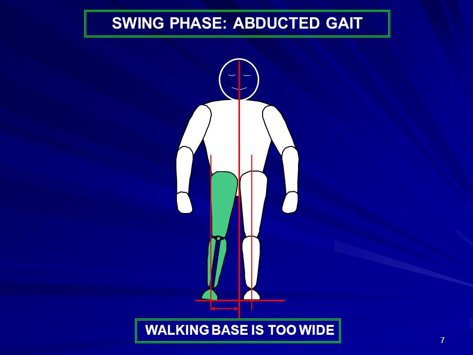 7 WALKING BASE IS TOO WIDE SWING PHASE: ABDUCTED GAIT