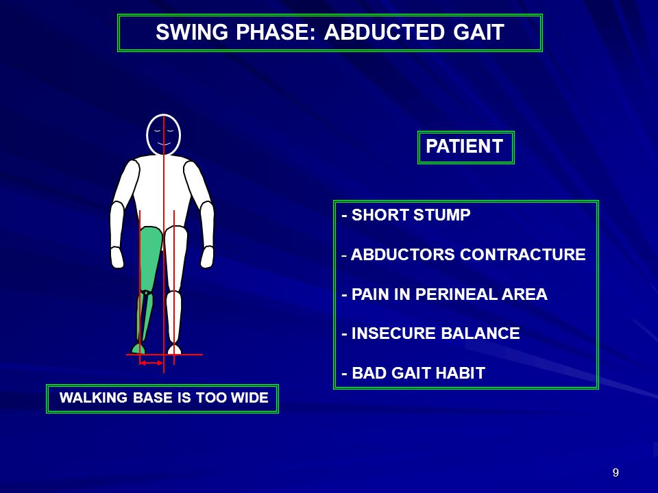 9 - SHORT STUMP - ABDUCTORS CONTRACTURE - PAIN IN PERINEAL AREA - INSECURE BALANCE - BAD GAIT HABIT PATIENT WALKING BASE IS TOO WIDE SWING PHASE: ABDU