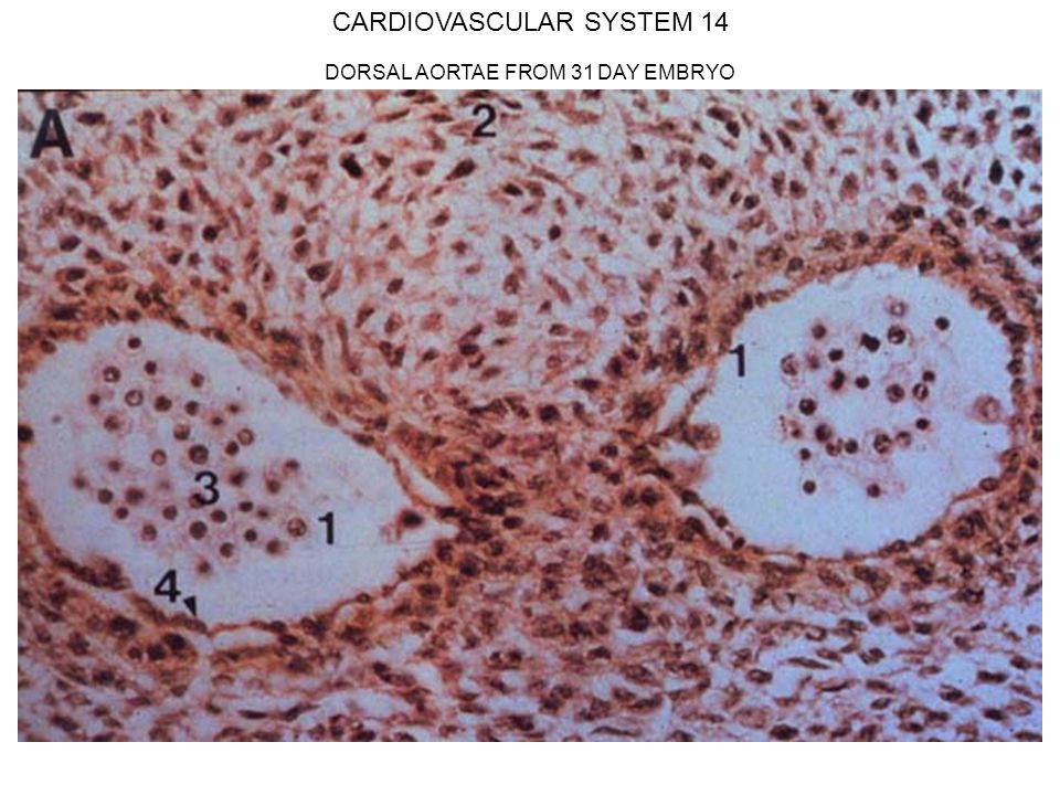 CARDIOVASCULAR SYSTEM 14 DORSAL AORTAE FROM 31 DAY EMBRYO
