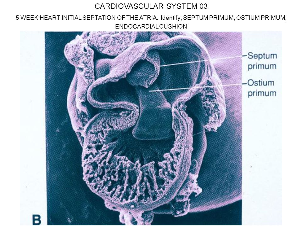 CARDIOVASCULAR SYSTEM 03 5 WEEK HEART INITIAL SEPTATION OF THE ATRIA.